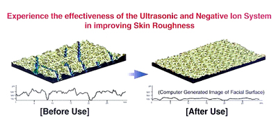 Ultrasonic Skin with Rejuvena
